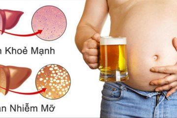 Mẹo hay bỏ túi cho Cánh mày râu để uống rượu không hại cho sức khoẻ